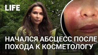 Москвичке едва не изуродовали лицо процедурой по омоложению