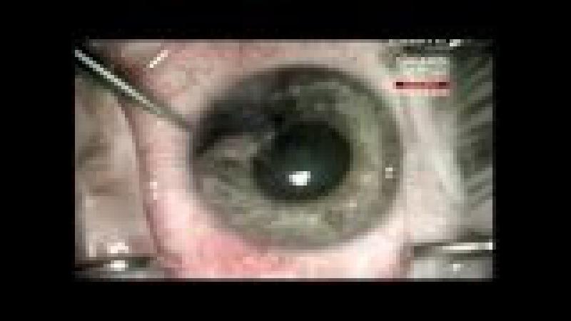 Заноза в глазу Моя ужасная история Инородные тел