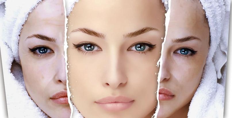 Как вернуть тусклой коже лица сияние?, изображение №1