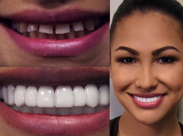 сказать, они красивые зубы фото до и после первое