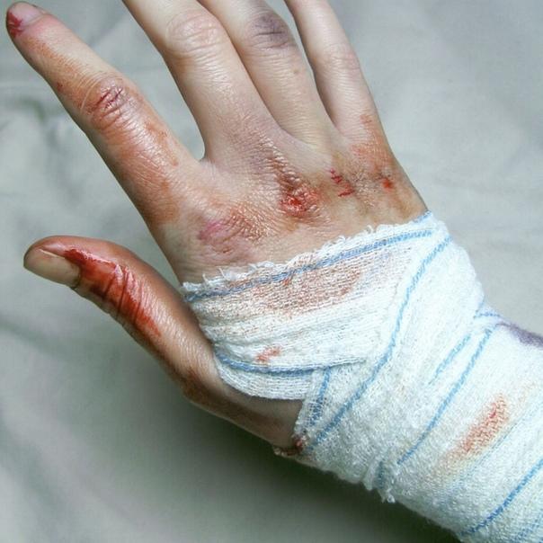 картинки разбитых женских рук любитель