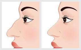 Как избавиться от горбинки на носу?