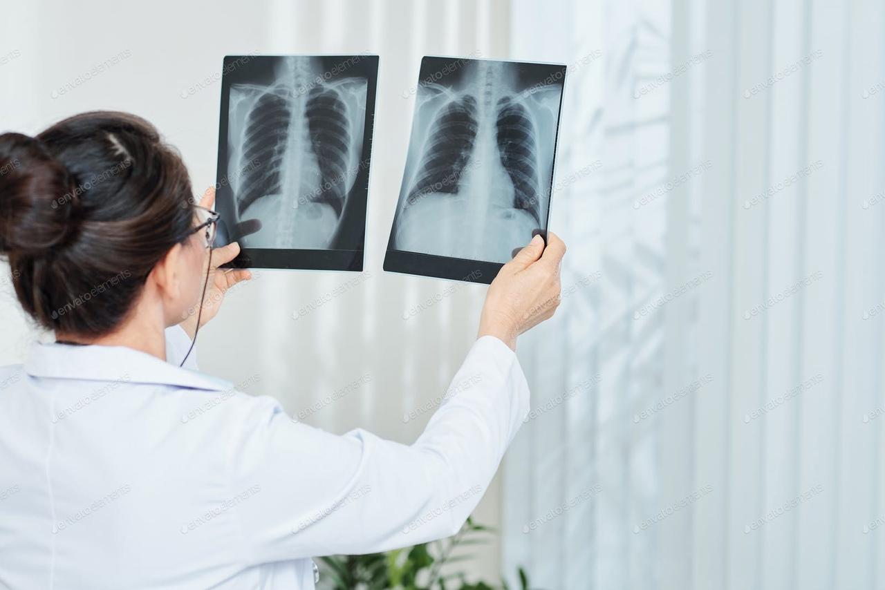 Как восстановить здоровье лёгких после COVID-19?