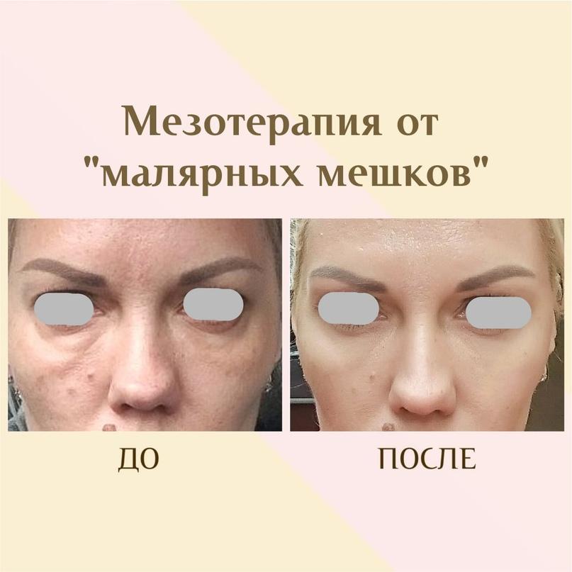 Область глаз. Старение и лечение., изображение №9